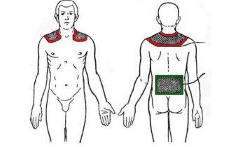 Электрофорез шейно-воротниковой зоны: препараты, проведение, плюсы и минусы
