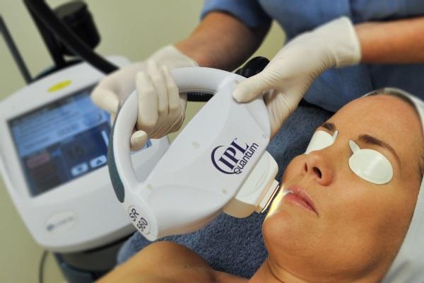 Фототерапия при куперозе имеет положительные отзывы