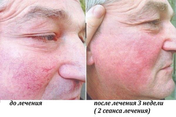 До и после лечения купероза методом фототерапии